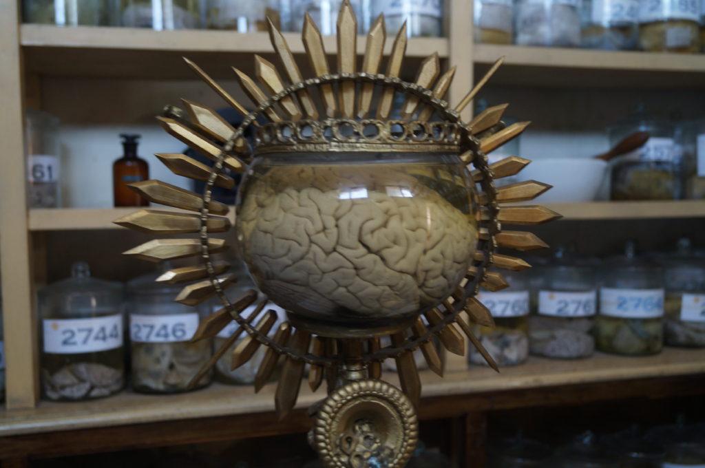 El Museo de Patologías Neurológicas alberga más de 2000 cerebros, de los cuales solo alrededor de 200 están en exhibición.